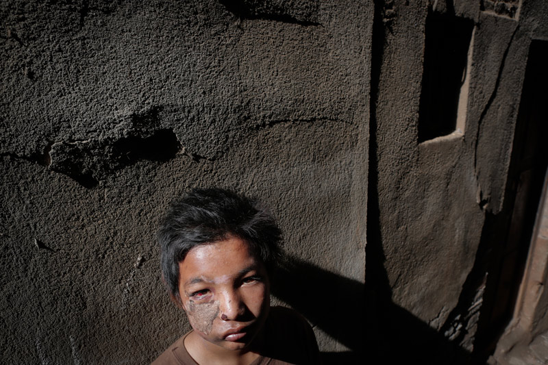 Picture of boy injured by Nepal Earthqauke
