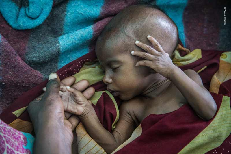 Infant suffering from malnutrition in Niger
